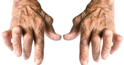 आमवात : एक जटिल दुः साध्य रोग