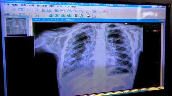 ¿Qué hace el soporte de rayos X?