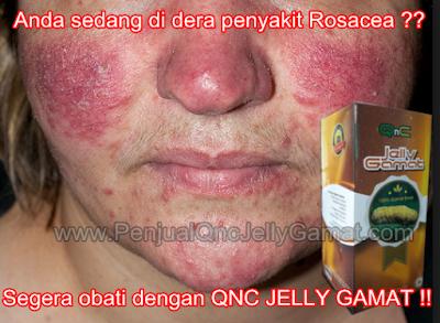 Obat Penghilang Rosacea Tradisional, 100% Terbukti AMPUH Menghilangkan Rosacea Dengan Cepat