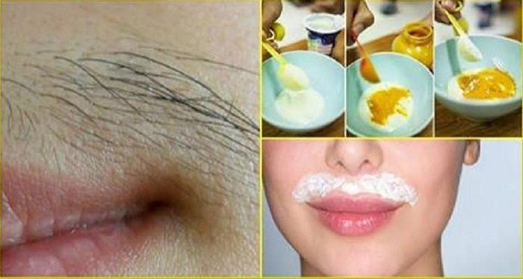 تخلصي نهائيا من شعيرات الوجه المحرجة بإستخدام الكركم