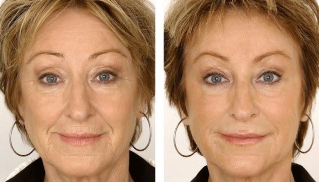 compare of Epione Skin Care Reviews