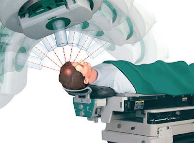 Tire 7 dúvidas sobre radioterapia