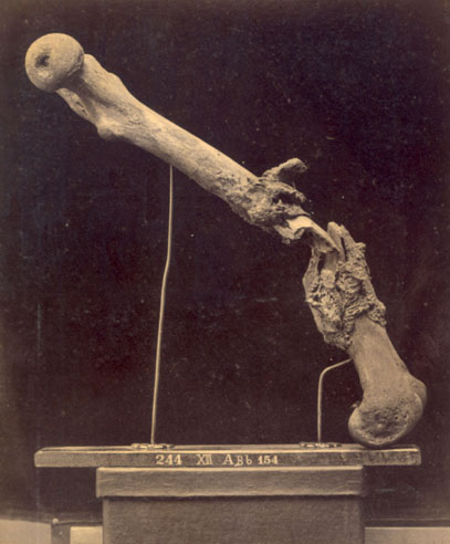 Deposits of Spongy Callus after a Gunshot Fracture of the Left Femur, circa 1870. Angel's Glow. marchmatron.com