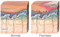 http://www.saysoeshson.com/2017/08/cara-mengobati-penyakit-psoriasis.html