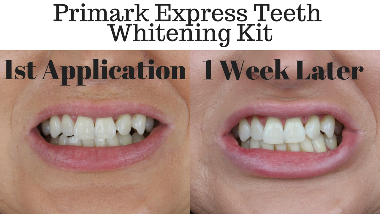Primark Teeth Whitening Kit Review Does It Really Work