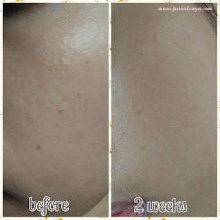 hasil pemakaian lavine skincare