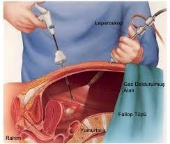 Pemulihan Pasca Operasi Kista