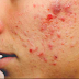 These Are The 5 Things That Can Cause Pimples You Didn't Know About