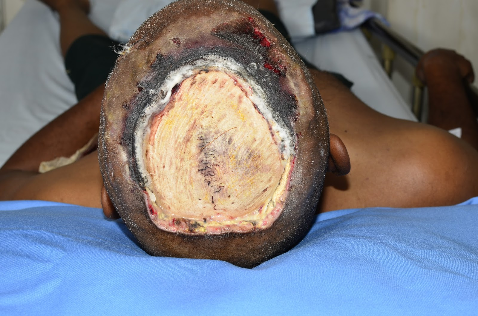 Natural Treatment For Fungal Infection On Scalp