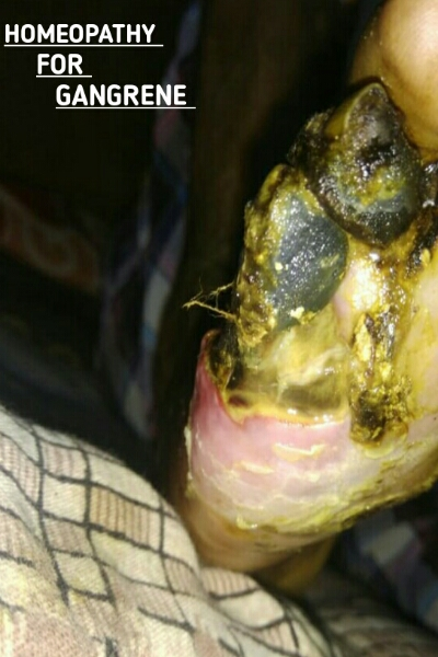 IS HOMEOPATHY USEFULL IN CASE OF GANGRENE - ALL ABOUT