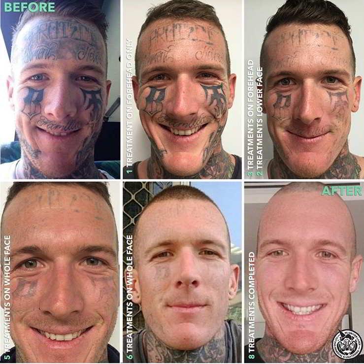 Impresionante borrado completo de tatuajes faciales