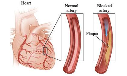 home remedies for coronary artery disease