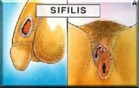 Obat Herbal Sipilis Ampuh Gambar%2Bsipilis%2Bpria%2Bdan%2Bwanita