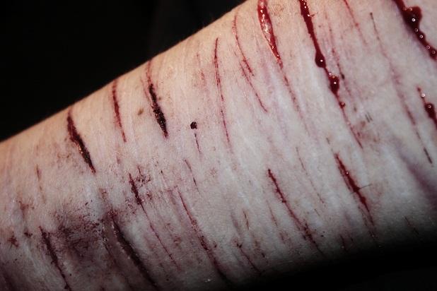 oikean käsivarren särky