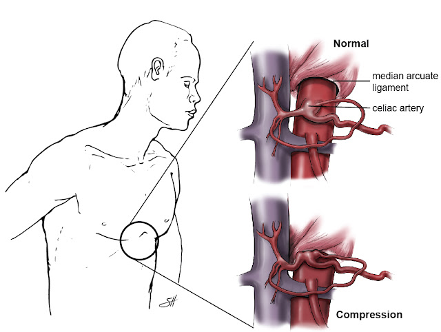 celiac artery compression syndrome