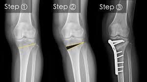natrimed gel prospect remedii de durere articulară