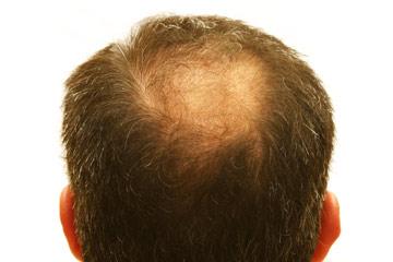The Truth About Male Hair Loss Treatments Hair Loss Talk