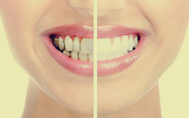 4 طرق لإزالة جير الأسنان في المنزل: لن تعاني من التسوس أو رائحة الفم الكريهة مرة أخرى