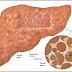 Sirosis Hati Definisi Penyebab Dan Pengobatan serta Gejala Klinis Penyakit Sirosis Hati Menurut Ilmu Kedokteran