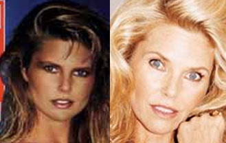 Agree, christie brinkley plastic surgery yes