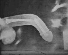 Frattura peniena: quando il pene si rompe | Clinica della Coppia
