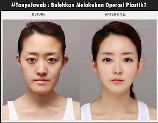 #TanyaJawab : Bolehkan Melakukan Operasi Plastik?
