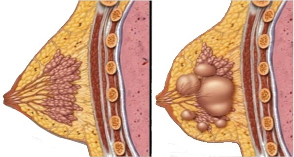 Say Goodbye To Breast Cysts Using This Natural Remedy