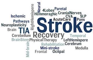 Penyakit stroke itu apa, Pengobatan Stroke Non Hemoragic, Harga Obat Herbal Stroke, Cara Pengobatan Orang Stroke, Patofisiologi Penyakit Stroke Iskemik, Obat Herbal Untuk Stroke Ringan, Pengobatan Setelah Stroke, Pengobatan Stroke Kardioemboli, Terapi Obat Stroke Non Hemoragik, Pencegahan Penyakit Stroke Hemoragik, Cara Menyembuhkan Stroke Dengan Herbal
