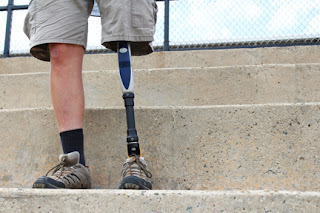 Amputee man with prosthetic leg, standing, detail