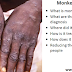 Health: 6 Things You Must Know About The Monkeypox Disease