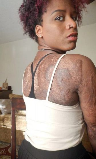 See girl who is patched up with skin from dead people .