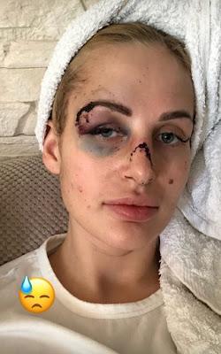 Damski bokser. Trener personalny pobił swoją dziewczynę