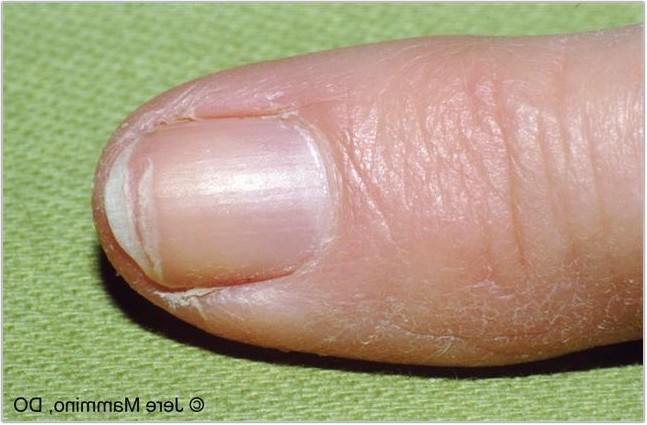 Why Are My Nails Splitting - Nails Magazine