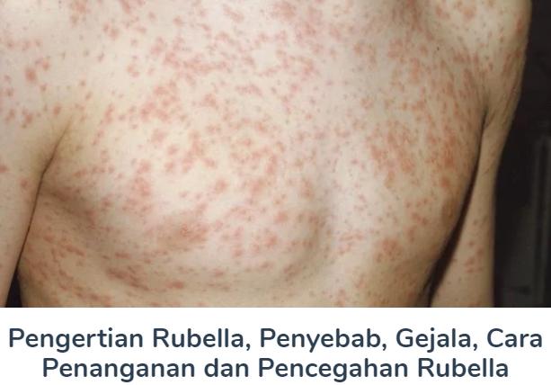 Pengertian Rubella Beserta Penyebab, Gejala, Cara Penanganan dan Pencegahan Terlengkap