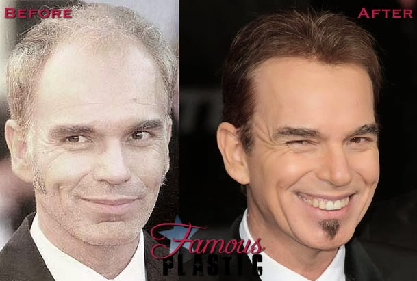 Billy Bob Thornton Plastic Surgery Facelift Hairplug