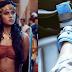'Aarambh' actress Devsena aka Karthika Nair slips from the harness, fractures her ankle