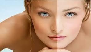 How to Cure White Spots on Skin | Natural Vitiligo Treatment
