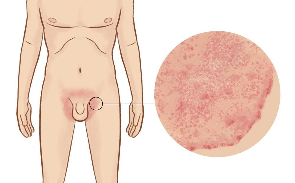 obat gatal kulit selangkangan paling ampuh