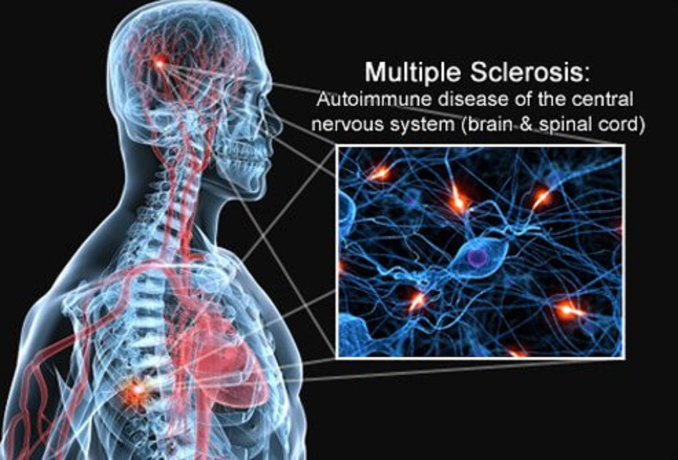 7 fatos sobre a esclerose múltipla que você deve saber