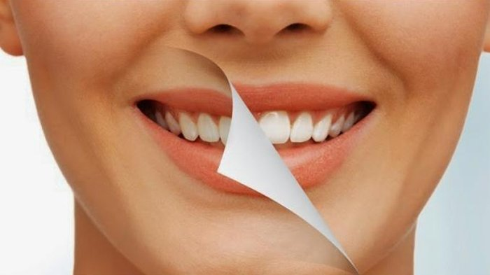 Veneer Gigi, Cara Mudah Memutihkan dan Merapikan Gigi
