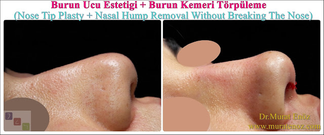 Cream for bruises after nose surgery - When will the bruises pass after nose surgery? - How to resolve swelling after nose surgery? - How to get rid of edema after nose surgery? - Persistent bruise after nose surgery - When will the swelling after nose surgery go down? - Bruises after nose surgery - After the nose surgery, under-eye bruises did not pass - Istanbul nose aesthetic