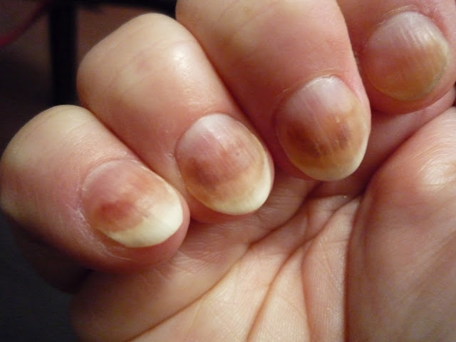 http://www.healthybeemagee.com/2017/08/how-to-cure-fingernail-fungus-fast.html