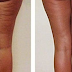 SHE RUBBED SOMETHING ON THE LEGS THAT WE ALL NOW HAVE AT HOME. THE RESULT IS INCREDIBLE!