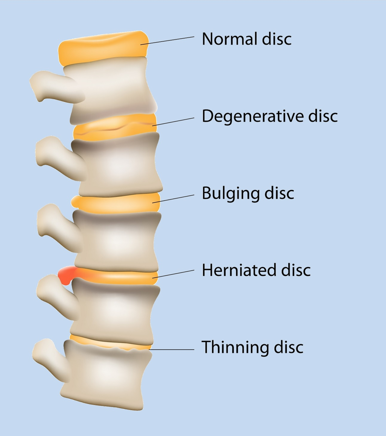 Natural Treatments For Spinal Disk Degeneration