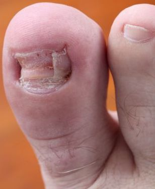 Claripro Scam Toe Nail Fungus Cure