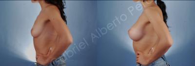 http://cirugiaesteticacostarica.com/cirugia-corporal/aumento-de-senos.html#6799-IMG_0007
