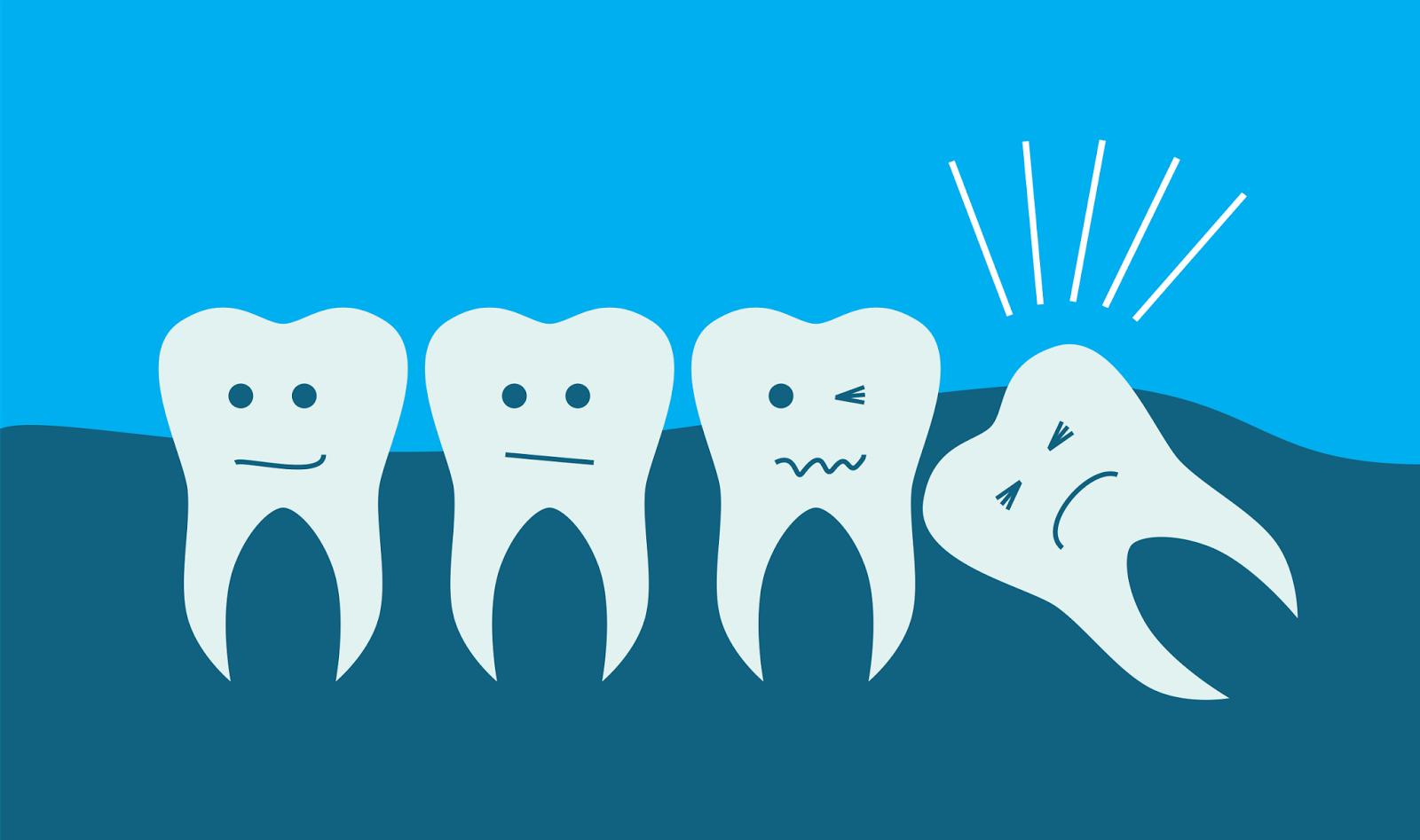 Segundo evolucionistas, o dente siso prova a evolução