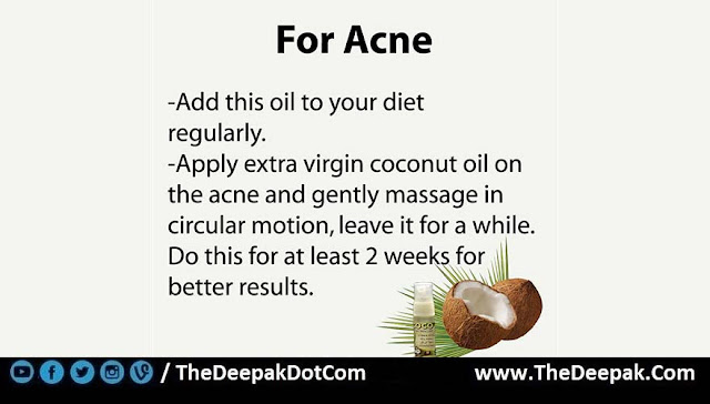 5 COCONUT OIL used for Acne