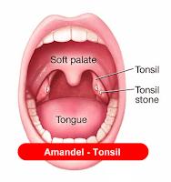 amandel tonsilitis
