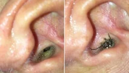Contoh laba-laba yang masuk ke dalam telinga